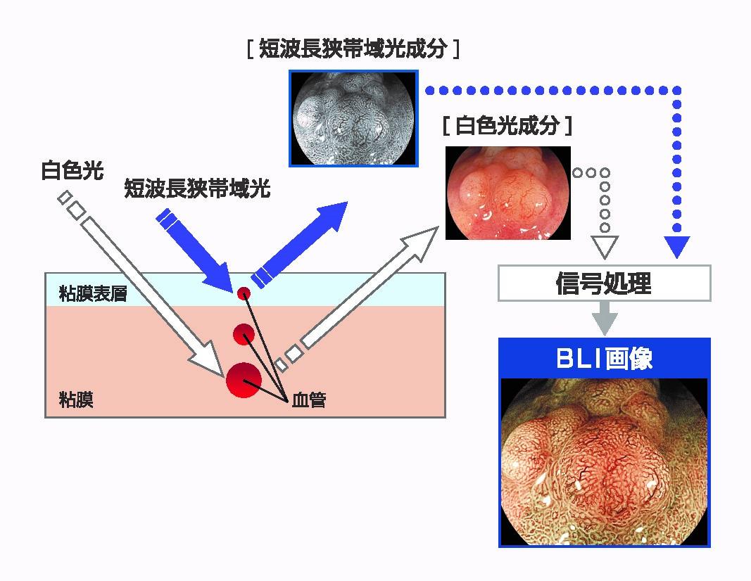 写真 便 大腸 色 癌 の
